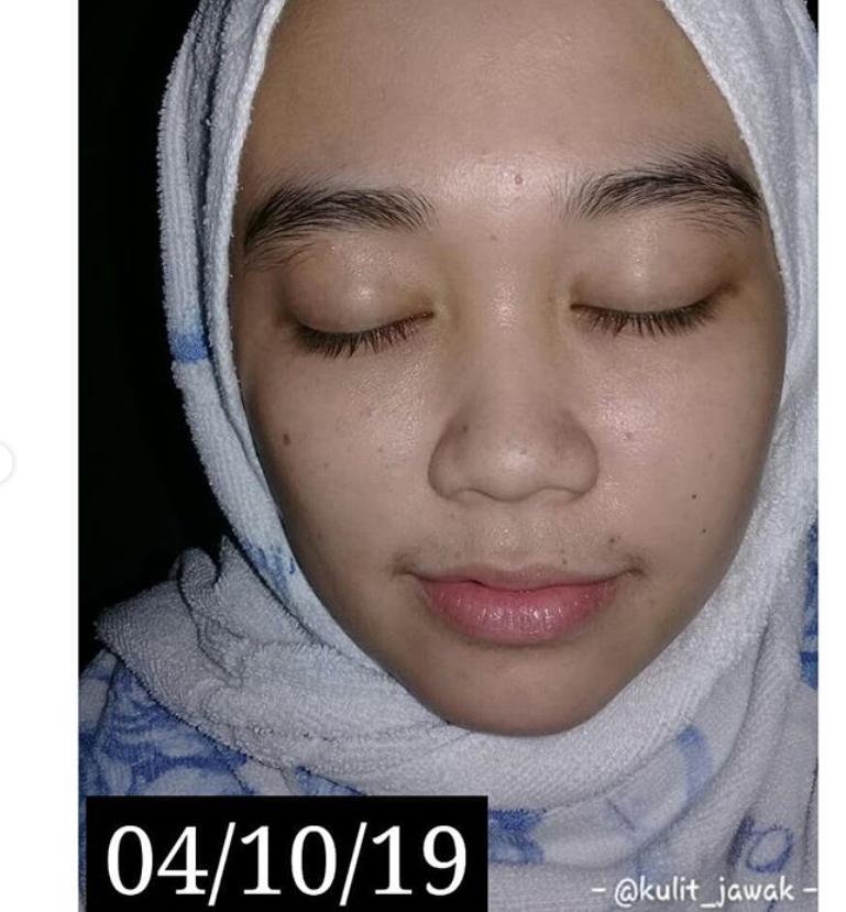Rasa Geram Bila Tiny Bumps Muncul Di Wajah Gadis Ini Kongsi Cara Cepat Bagi Hilangkannya Hijabista
