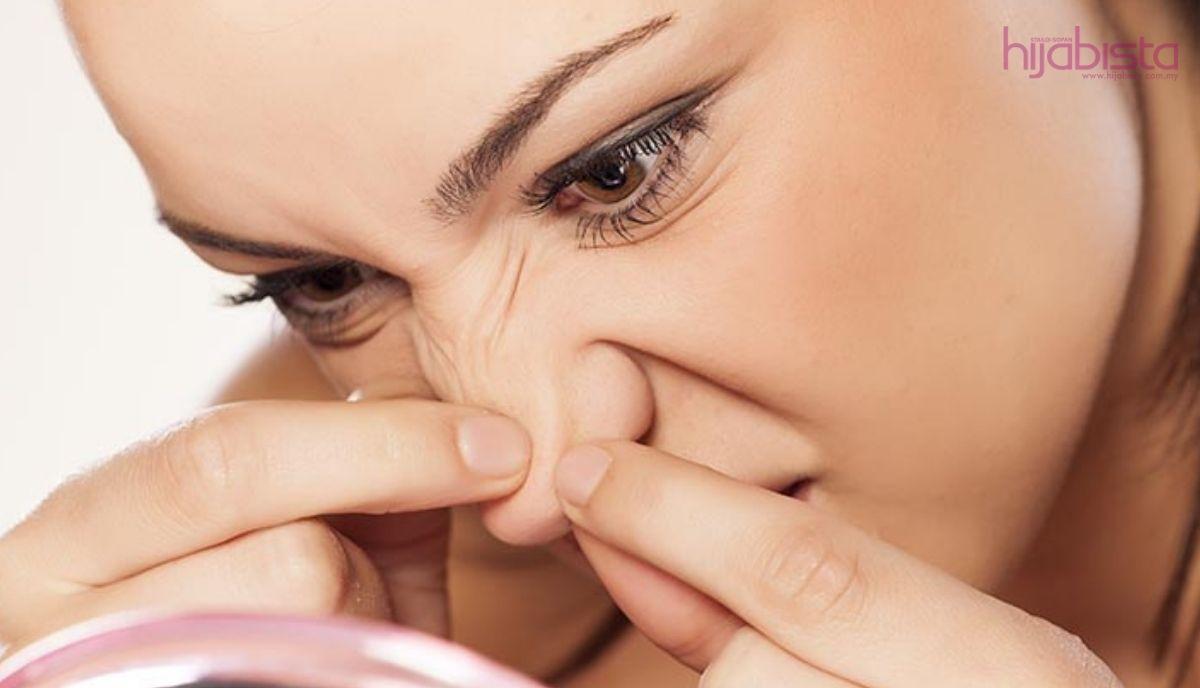 Ya Ini Cara Yang Betul Menghilangkan Dan Mencegah Jerawat Di Dalam Hidung Anda Hijabista